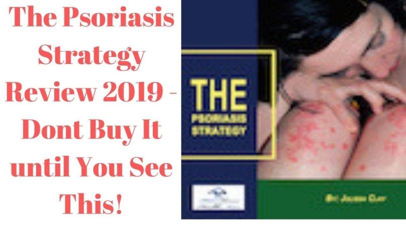 The Psoriasis Strategy Review - theblogpoint.com